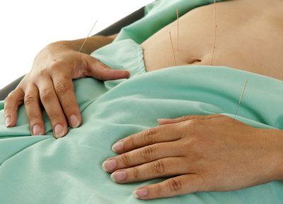 Bare Abdomen With Acupuncture Needles